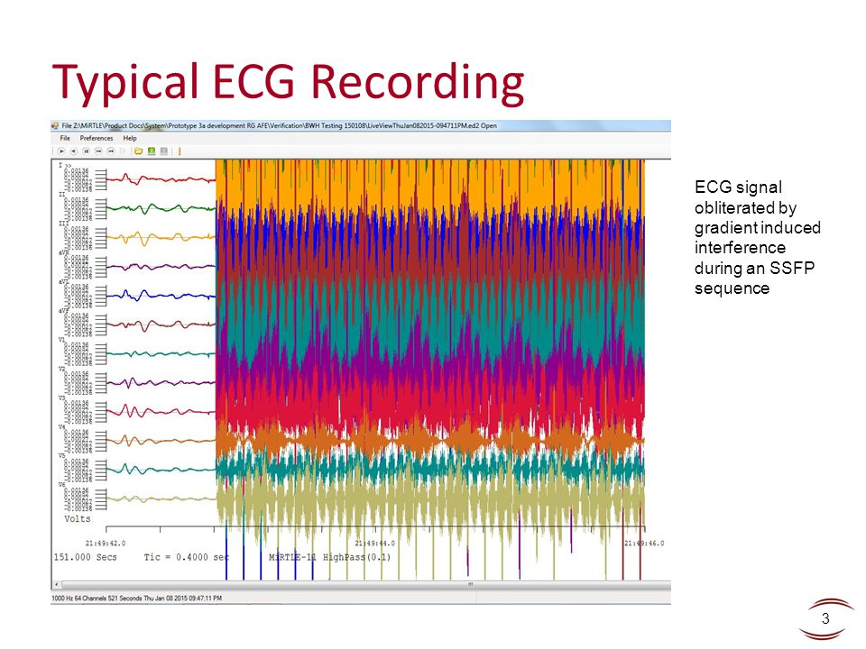 Typical ECG Recording ECG signal obliterated by gradient induced interference during an SSFP sequence.