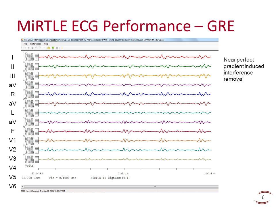 MiRTLE ECG Performance – GRE