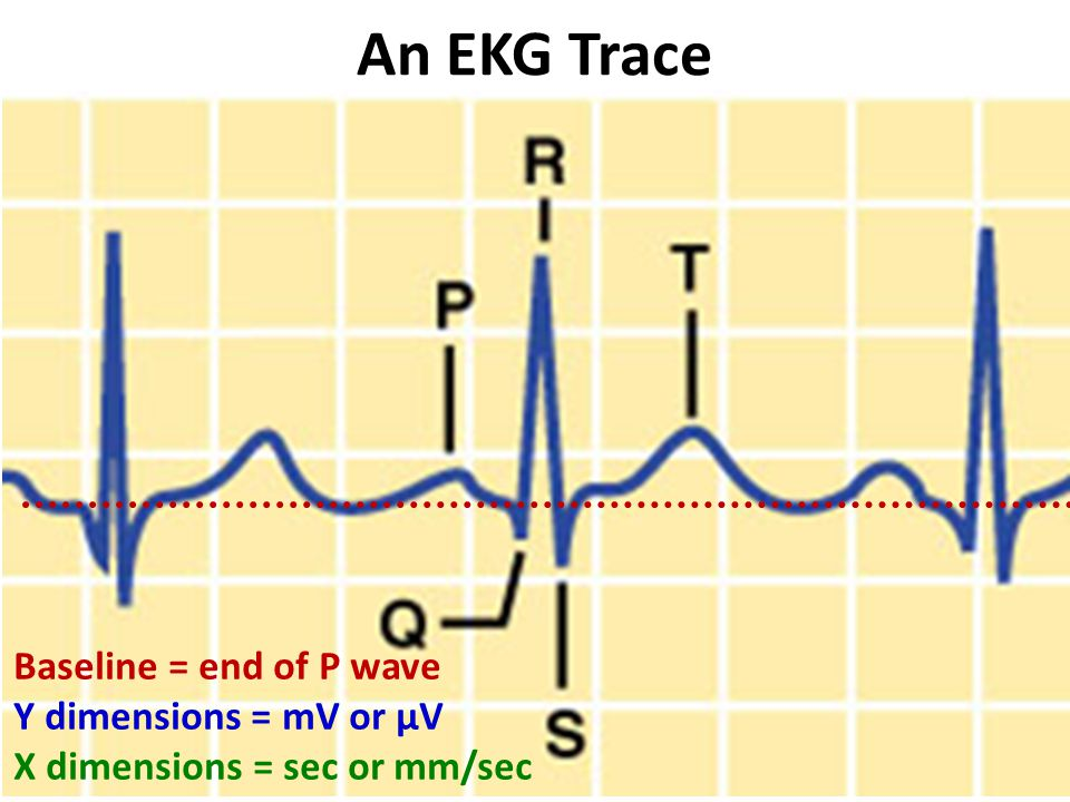 An EKG Trace Baseline = end of P wave Y dimensions = mV or µV