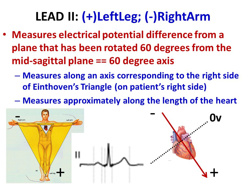 LEAD II: (+)LeftLeg; (-)RightArm
