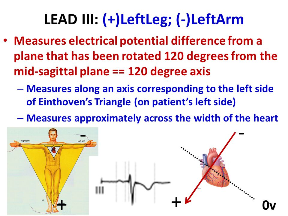LEAD III: (+)LeftLeg; (-)LeftArm