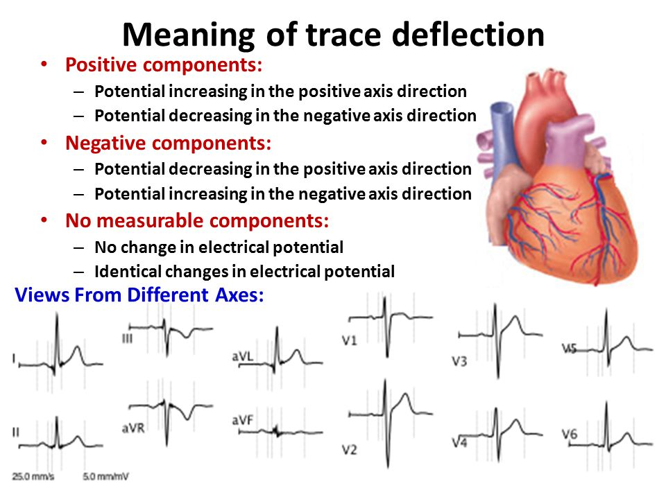 Meaning of trace deflection
