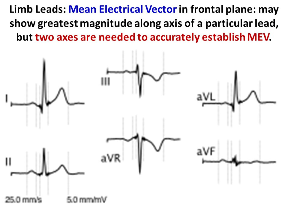 Limb Leads: Mean Electrical Vector in frontal plane: may show greatest magnitude along axis of a particular lead, but two axes are needed to accurately establish MEV.
