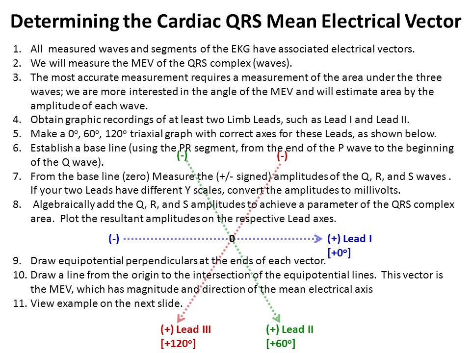 Determining the Cardiac QRS Mean Electrical Vector
