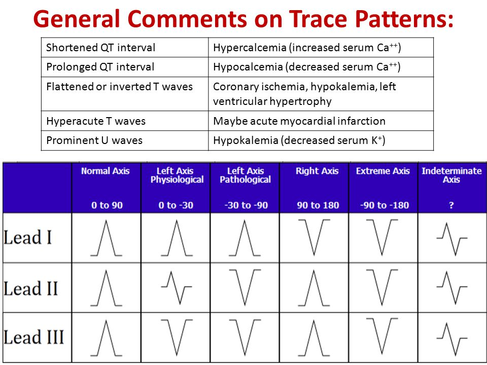 General Comments on Trace Patterns: