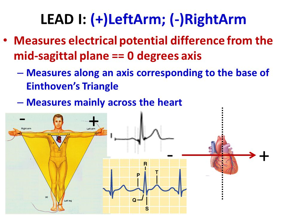 LEAD I: (+)LeftArm; (-)RightArm
