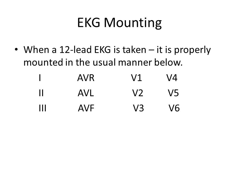 EKG Mounting When a 12-lead EKG is taken – it is properly mounted in the usual manner below. I AVR V1 V4.