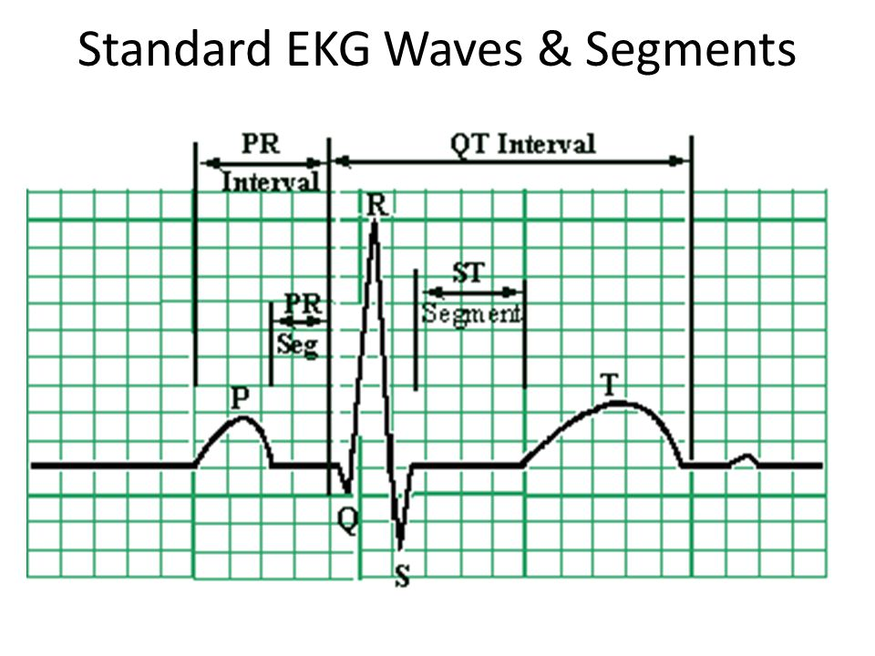 Standard EKG Waves & Segments