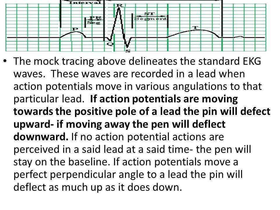 The mock tracing above delineates the standard EKG waves