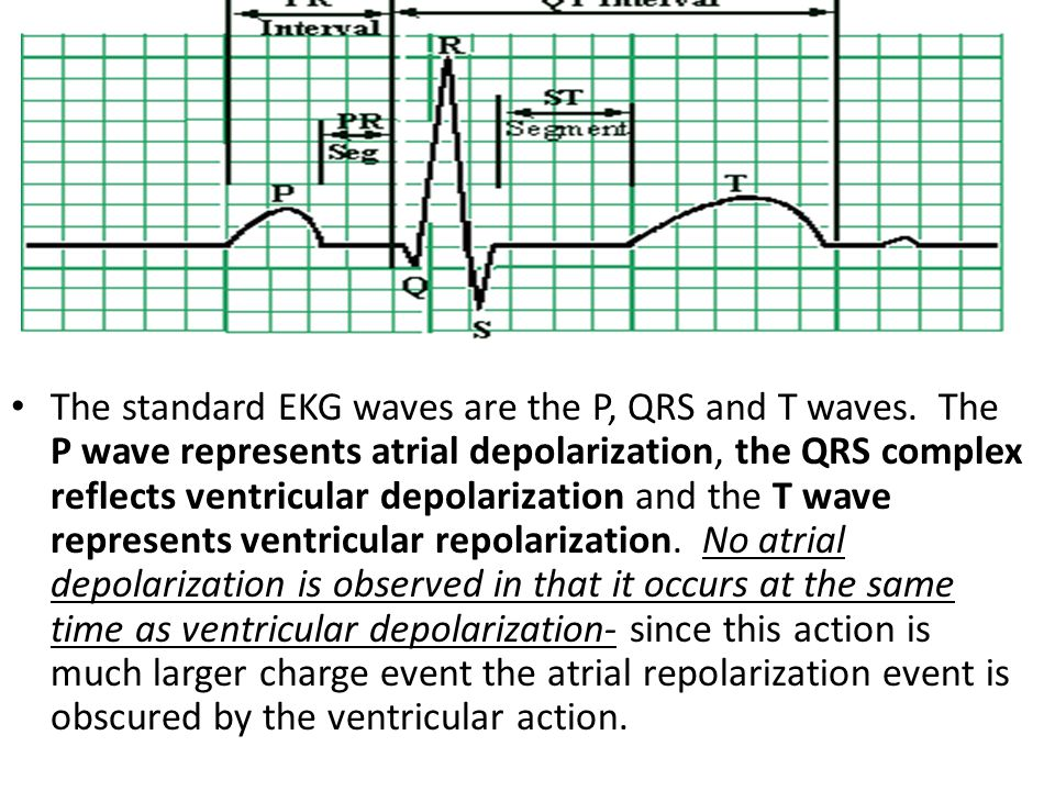 The standard EKG waves are the P, QRS and T waves