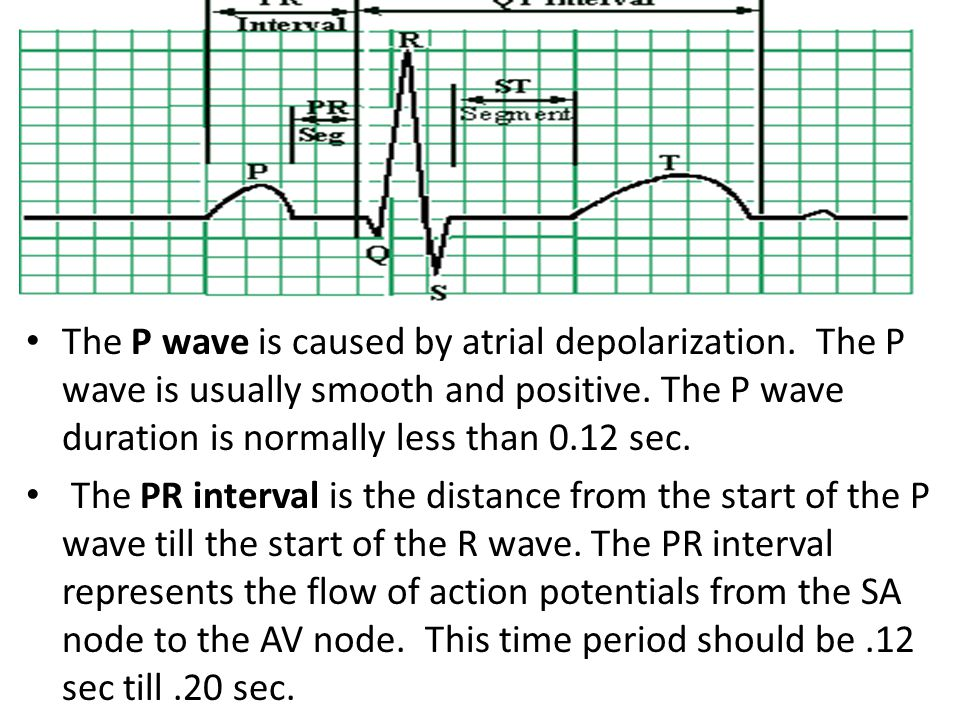 The P wave is caused by atrial depolarization