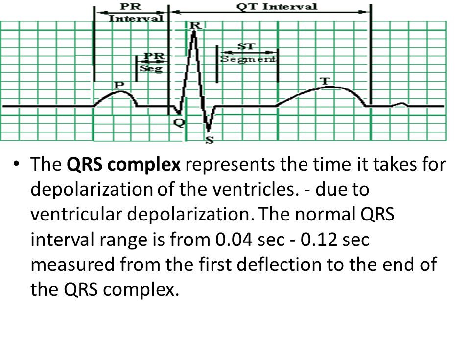 The QRS complex represents the time it takes for depolarization of the ventricles.