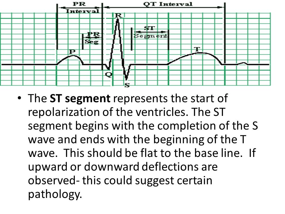 The ST segment represents the start of repolarization of the ventricles.