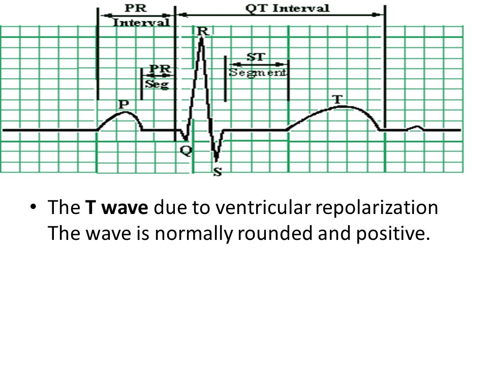 The T wave due to ventricular repolarization The wave is normally rounded and positive.