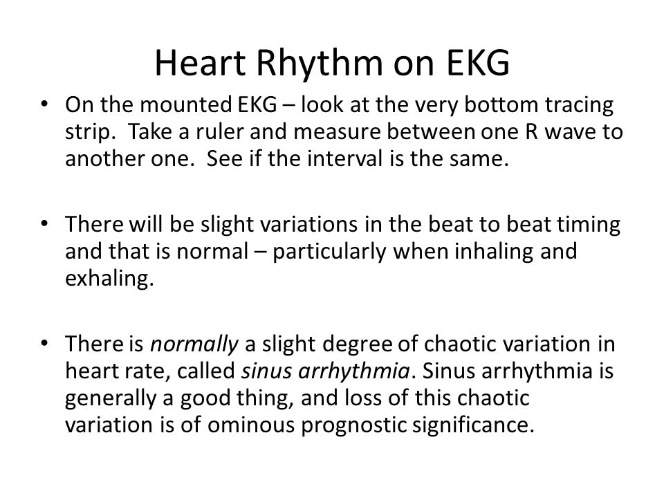 Heart Rhythm on EKG