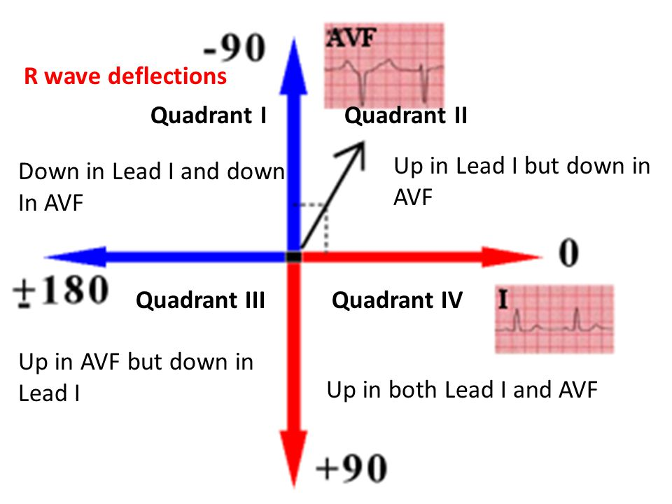 R wave deflections Quadrant I Quadrant II. Up in Lead I but down in AVF. Down in Lead I and down.