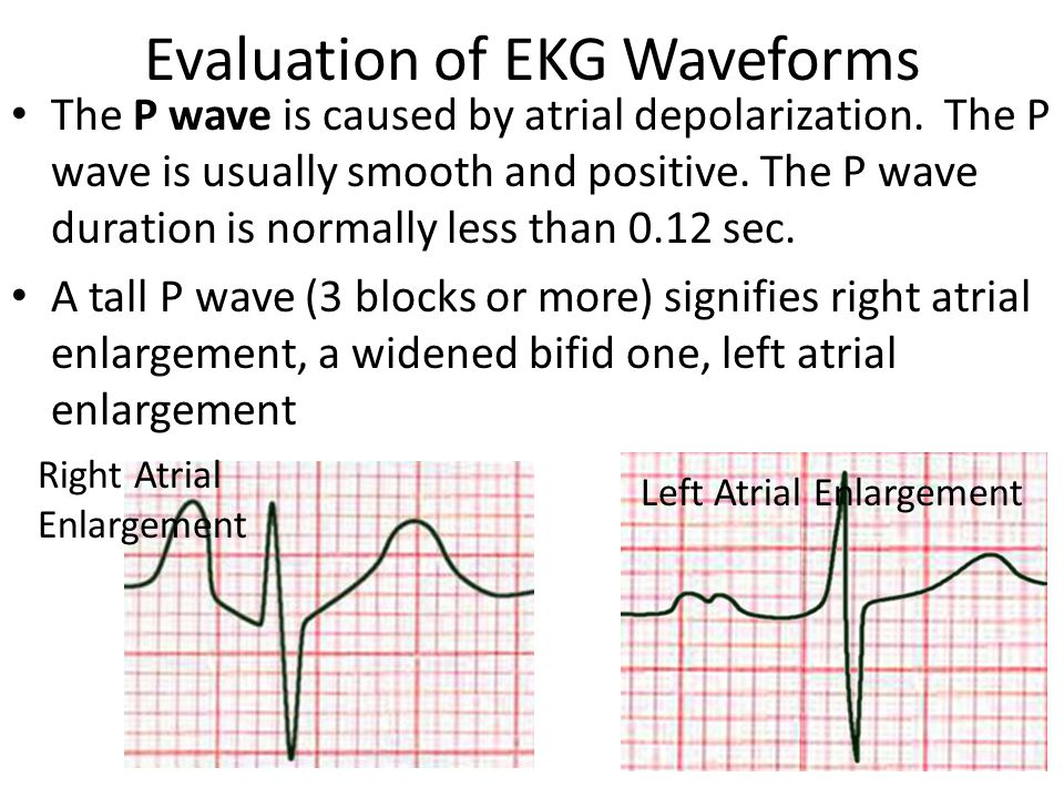 Evaluation of EKG Waveforms
