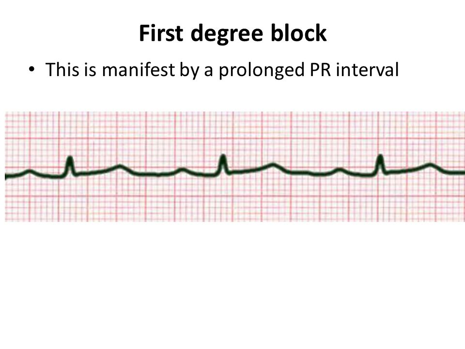 First degree block This is manifest by a prolonged PR interval