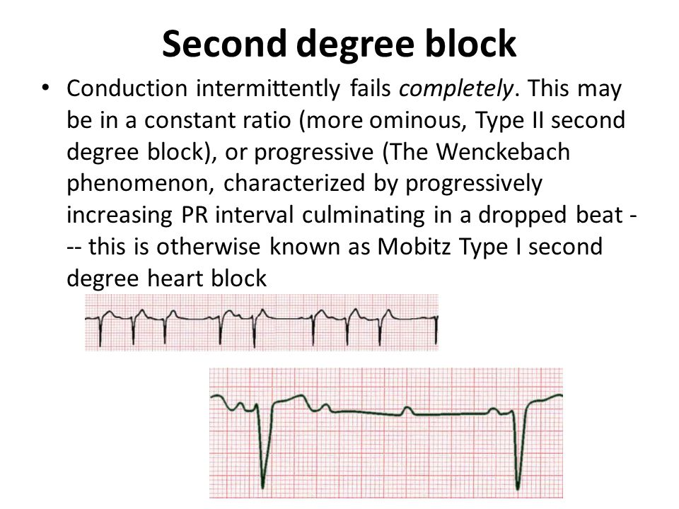 Second degree block