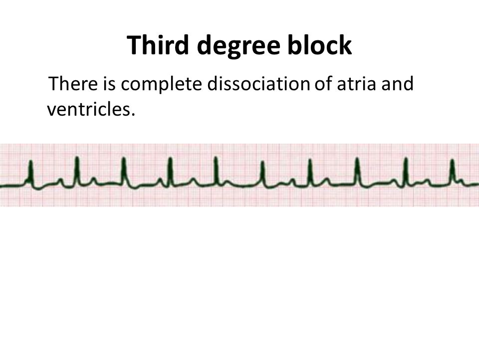 Third degree block There is complete dissociation of atria and ventricles.