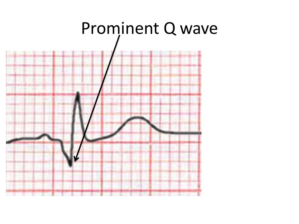 Prominent Q wave