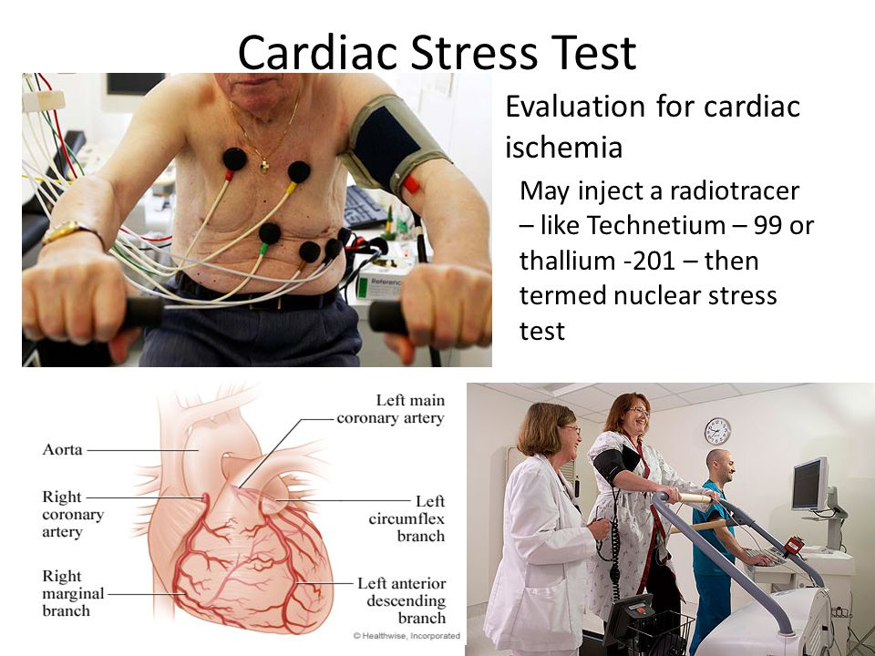 Cardiac Stress Test Evaluation for cardiac ischemia