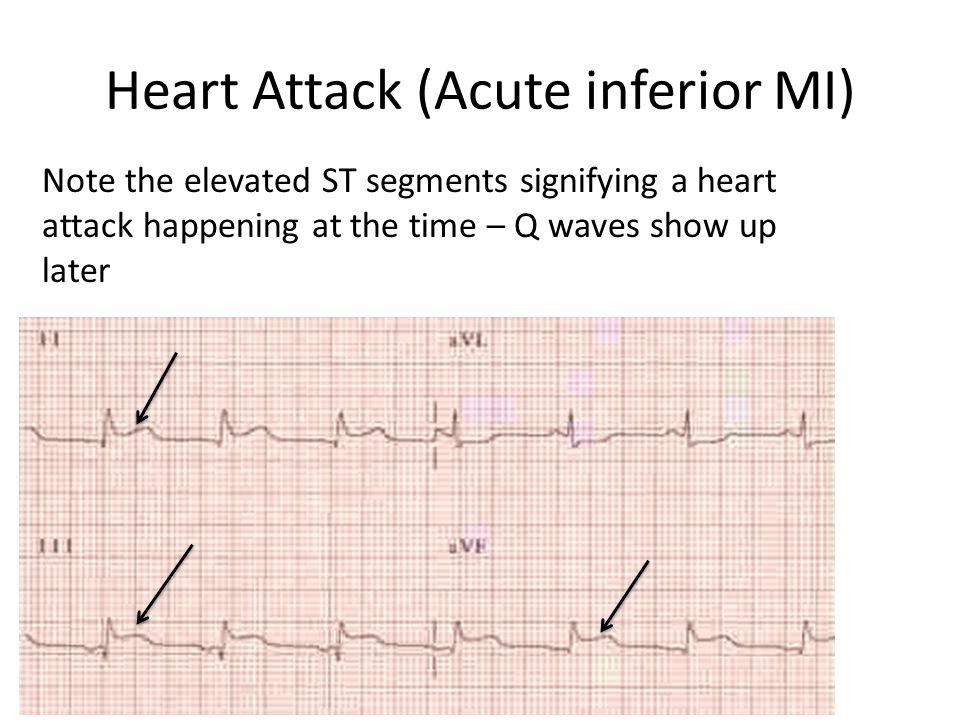 Heart Attack (Acute inferior MI)