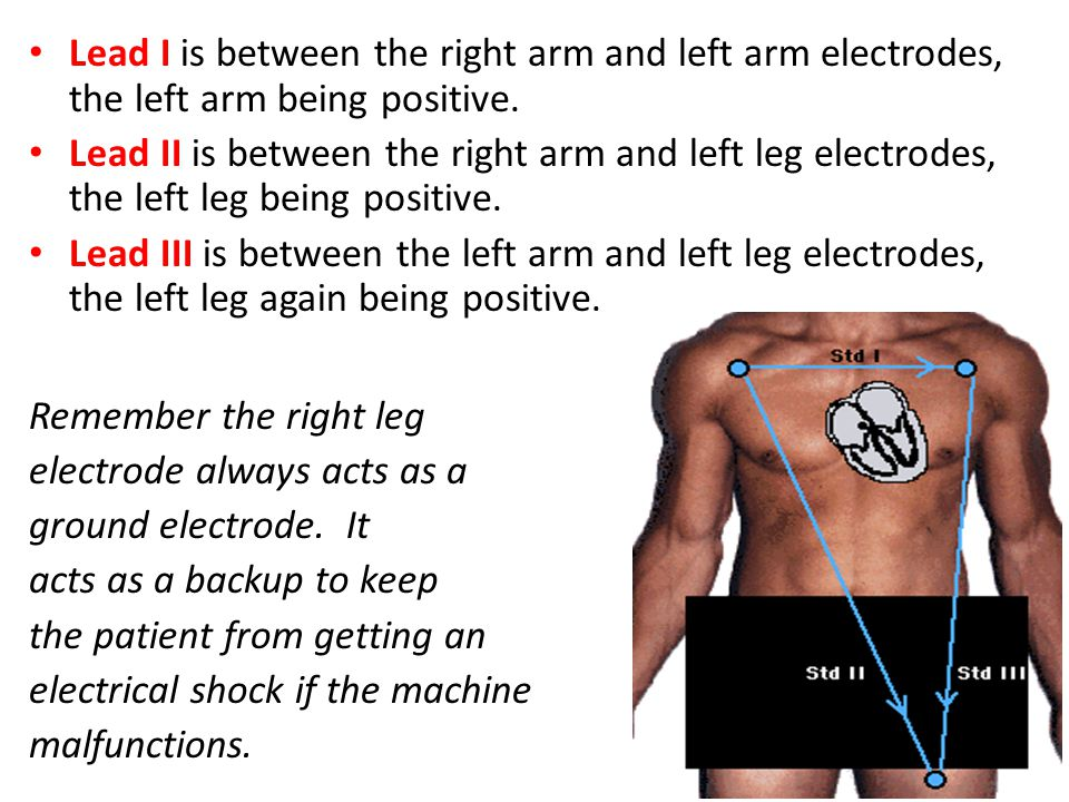 Lead I is between the right arm and left arm electrodes, the left arm being positive.