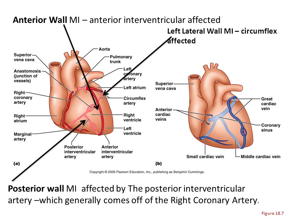 Anterior Wall MI – anterior interventricular affected