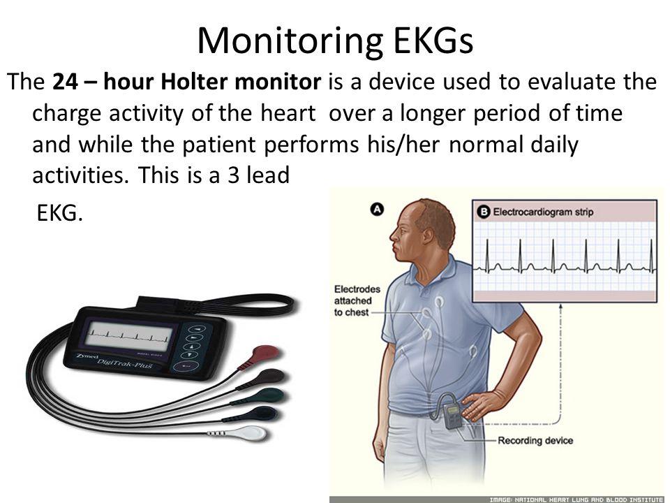 Monitoring EKGs