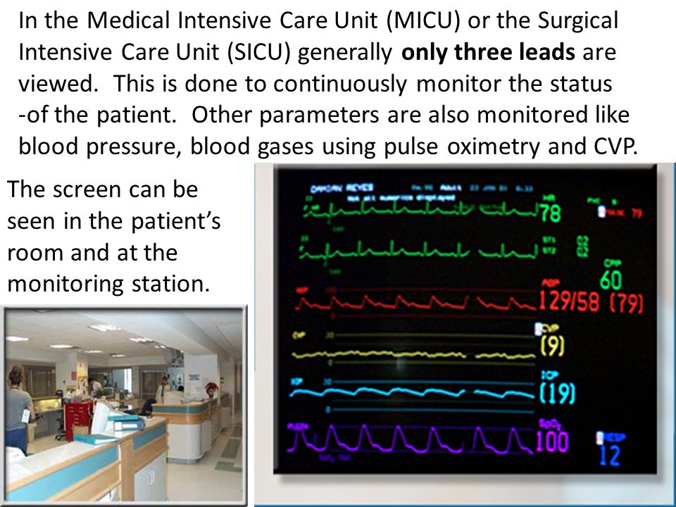 In the Medical Intensive Care Unit (MICU) or the Surgical Intensive Care Unit (SICU) generally only three leads are viewed. This is done to continuously monitor the status