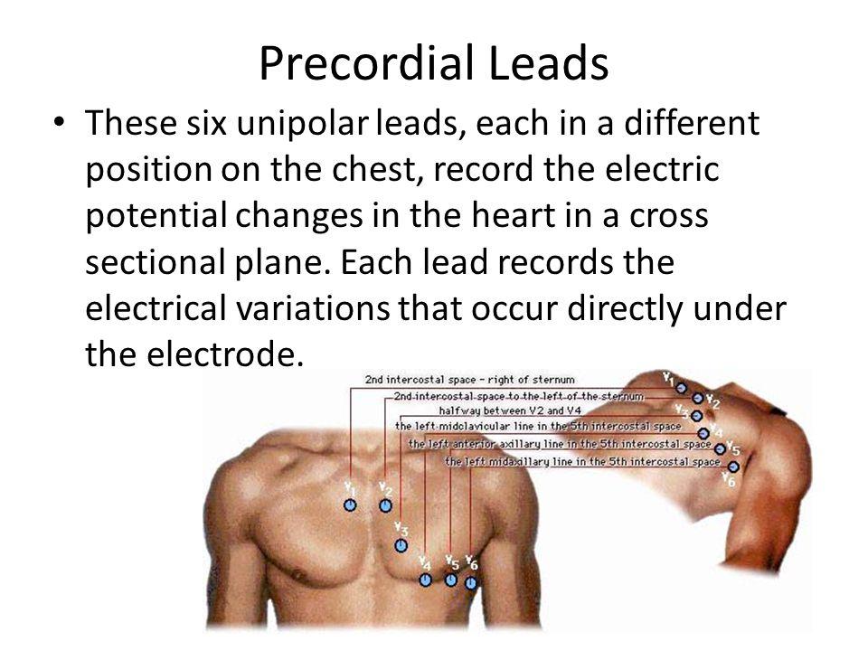 Precordial Leads