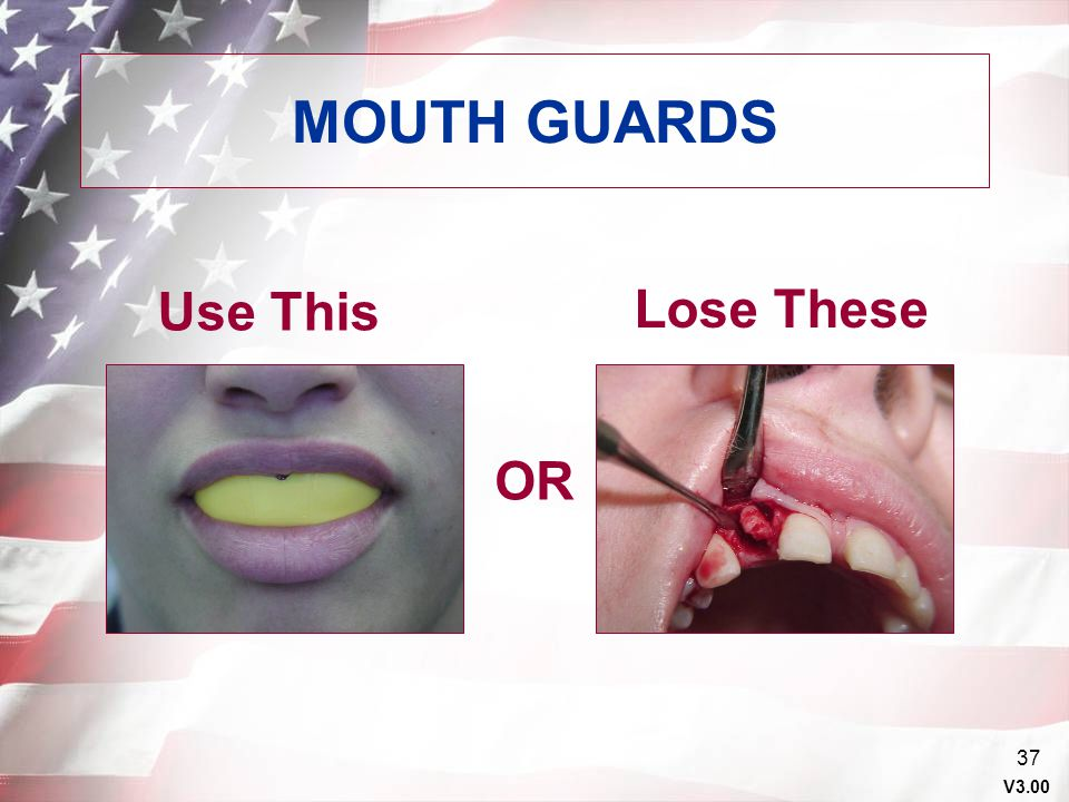 MOUTH GUARDS Use This Lose These OR Points to Emphasize Orally