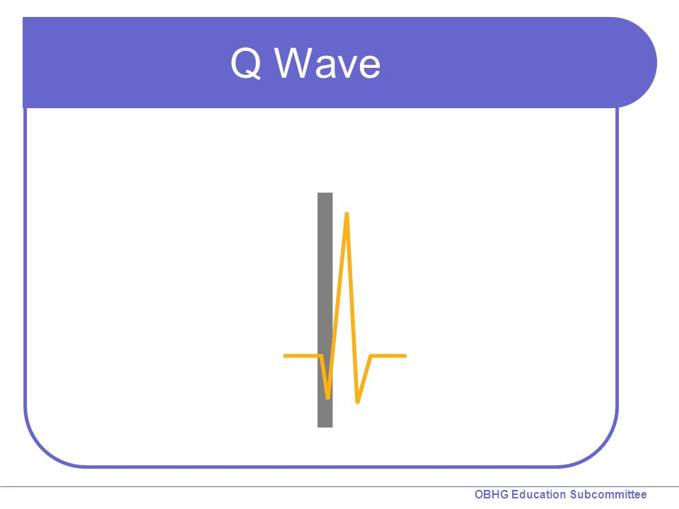 Q Wave Q Wave: A negative deflection preceding the R wave.