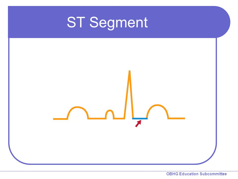 ST Segment ST segment: The ECG segment between the J-point and the beginning of the T wave.