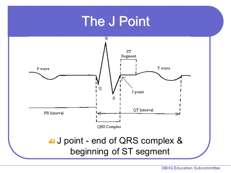 J point - end of QRS complex & beginning of ST segment