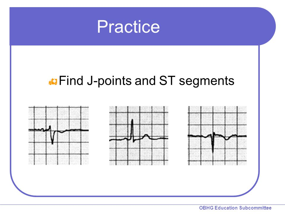 Practice Find J-points and ST segments Review J-points and ST segment.