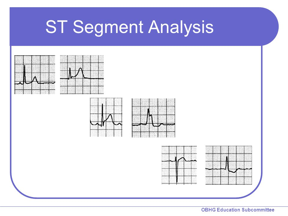 ST Segment Analysis This time find not only the J-point, but determine if the ST segment is elevated one millimeter or more above the TP segment.