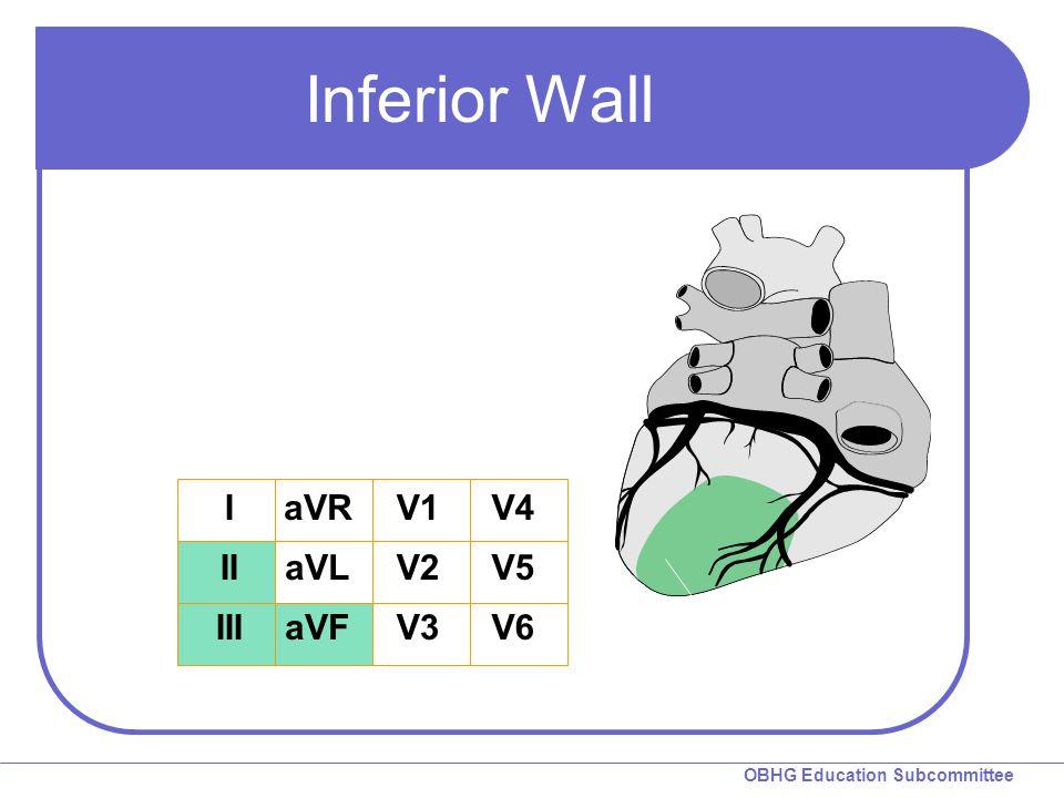 Inferior Wall I II III aVR aVL aVF V1 V2 V3 V4 V5 V6 Inferior Wall