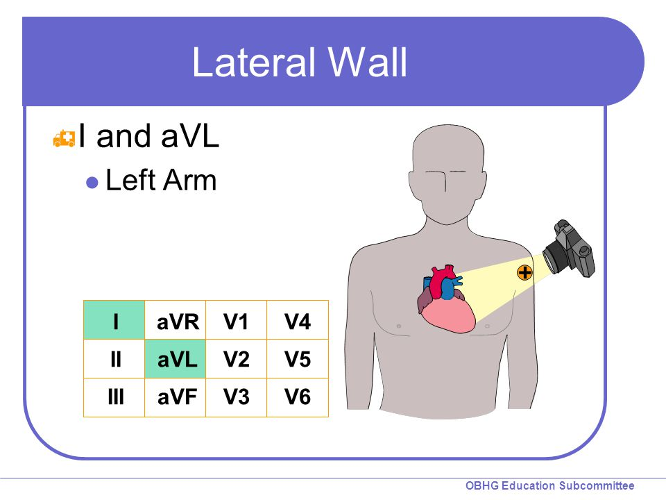 Lateral Wall I and aVL Left Arm I II III aVR aVL aVF V1 V2 V3 V4 V5 V6