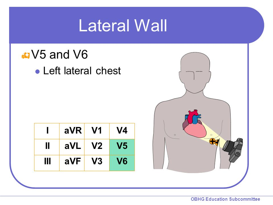 Lateral Wall V5 and V6 Left lateral chest I II III aVR aVL aVF V1 V2
