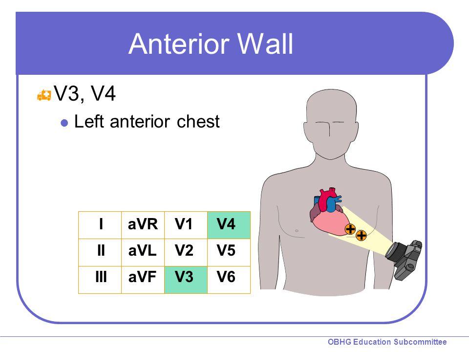 Anterior Wall V3, V4 Left anterior chest I II III aVR aVL aVF V1 V2 V3