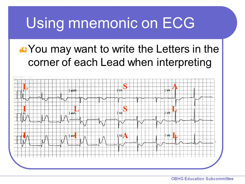Using mnemonic on ECG You may want to write the Letters in the corner of each Lead when interpreting.