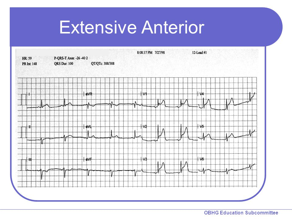 Extensive Anterior Instructions: Review the 12-lead ECG.