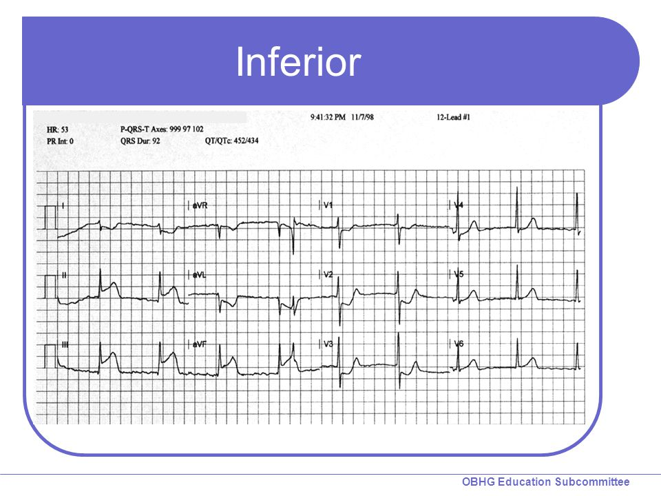 Inferior Instructions: Review the 12-lead ECG.