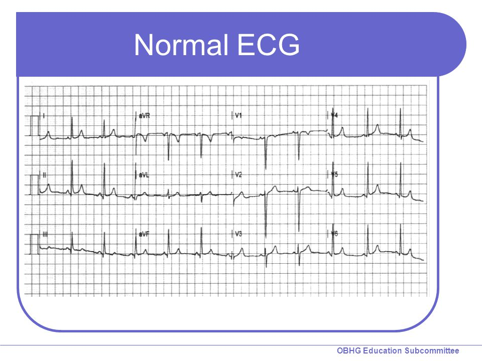 Normal ECG ST segments are iso-electric.