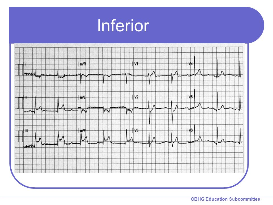 Inferior Ask group to look for ST elevation.