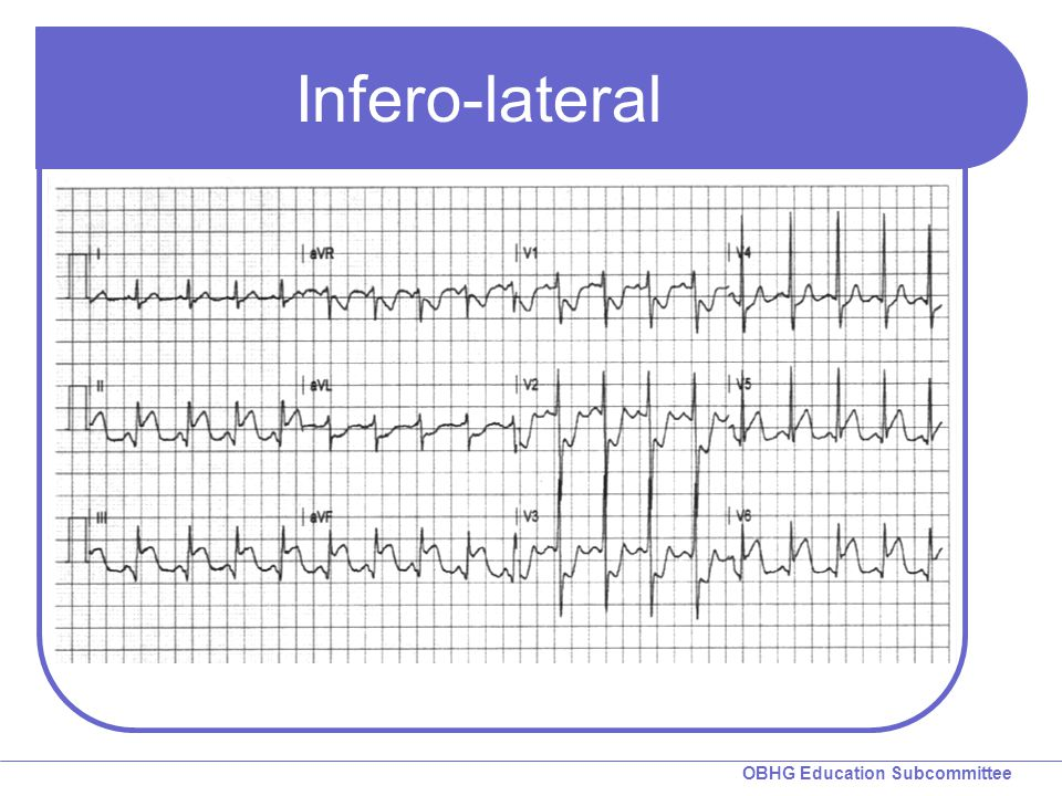 Infero-lateral Inferolateral STEMI with RCs and Q-waves in II, III, aVF & V5.