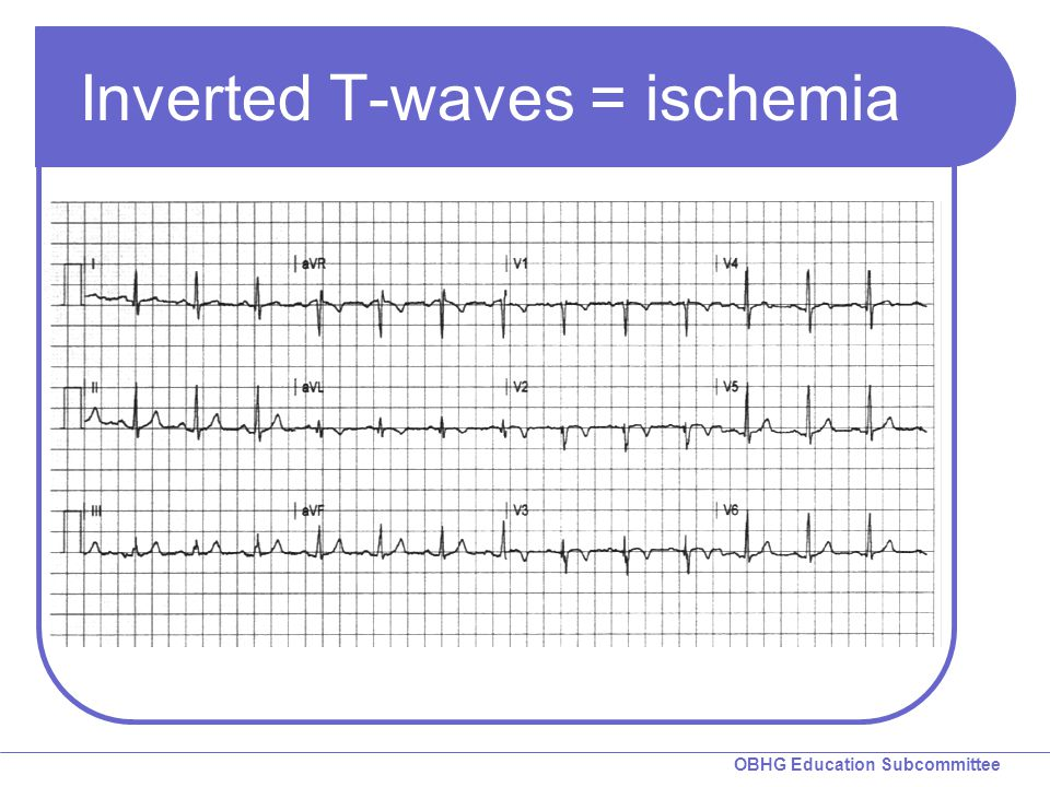 Inverted T-waves = ischemia