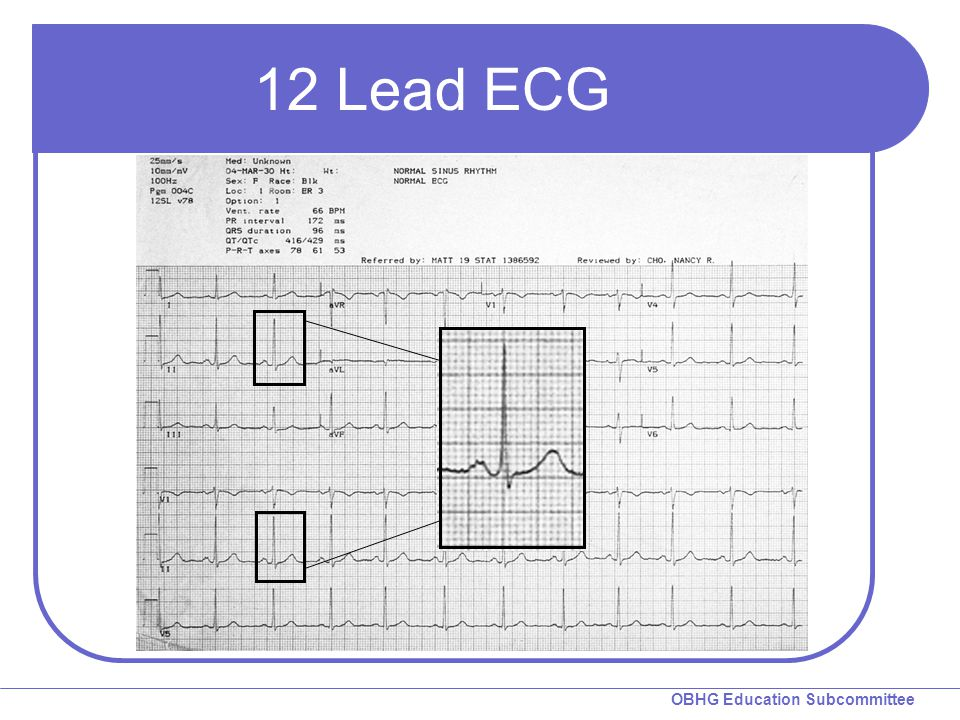 12 Lead ECG Some of you may be wondering how anyone can make a sound interpretation with only 2.5 seconds shown in each lead.